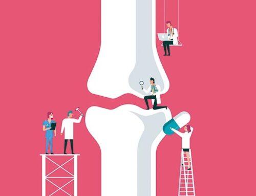 Ρήξη του πρόσθιου χιαστού συνδέσµου – Πόσο σημαντική είναι για τη λειτουργία του γόνατος;